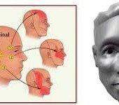 bolit-trojnichny-j-nerv